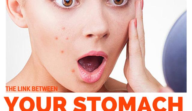Low stomach acid acne